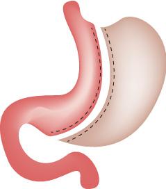 Sleeve gastrectomie